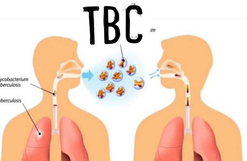 tuberkolosis atau TBC