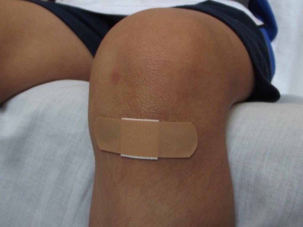 luka lama sembuh sebagai salah satu gejala gula darah tinggi