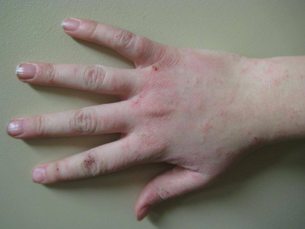 kulit kering sebagai gejala gula darah tinggi