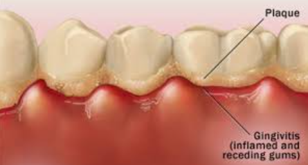 gula batu dapat menyebabkan gingivitis